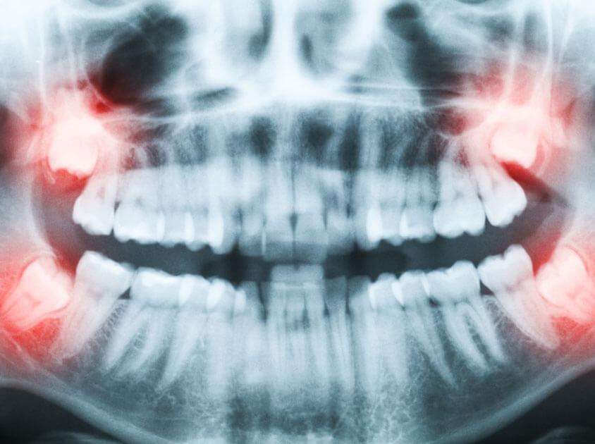 Affordable Wisdom Teeth Removal Houston, Tx