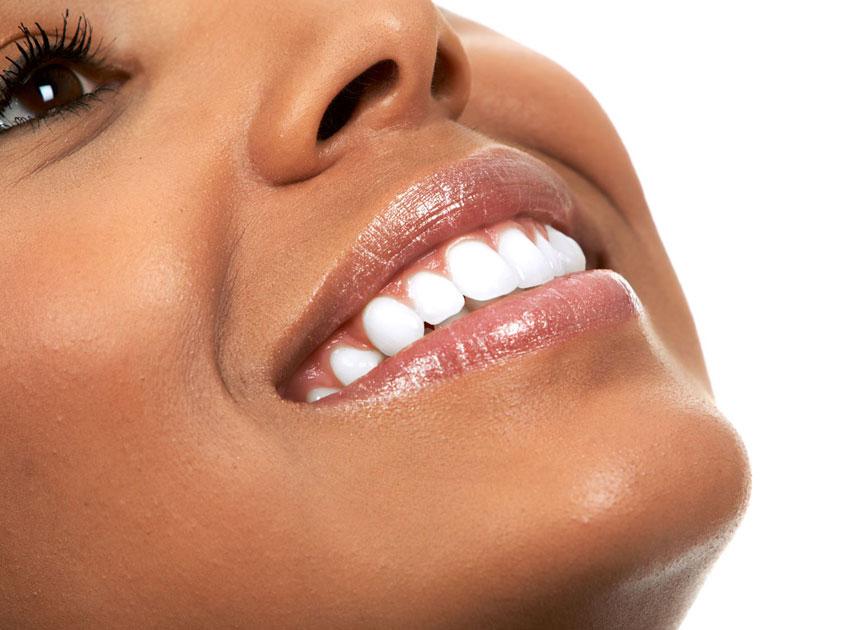 Zoom Teeth Whitening Houston, Tx